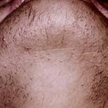 Chin Hair Before