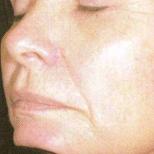 Laser Facial After