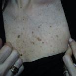Sun Spots Before Treatment